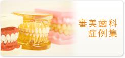 審美歯科症例集